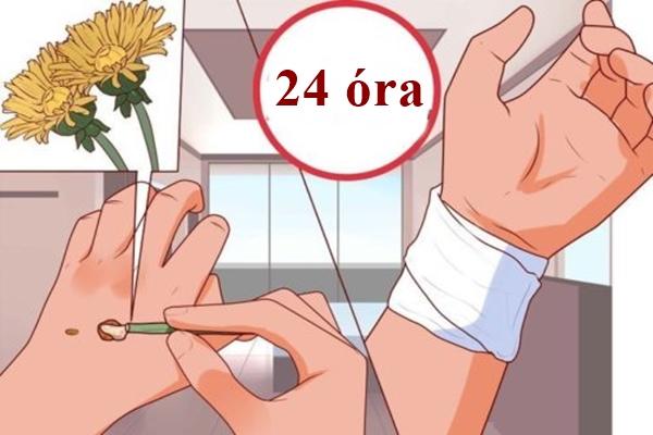 szemolcs-megszuntetese-1-ejszaka-alatt