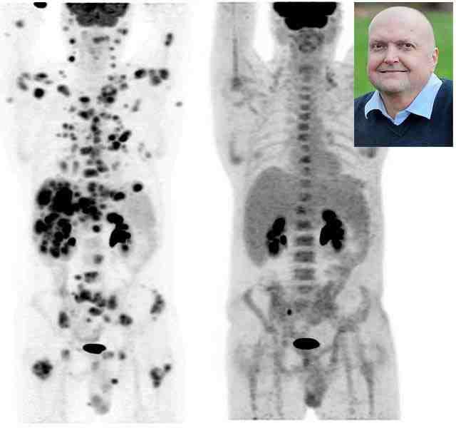 70 daganat tűnt el a férfi testéből egy új kezelésnek köszönhetően