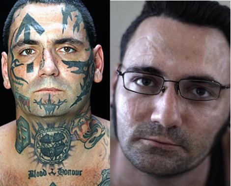 Új esély, egy új kezdet – A tetoválás eltüntetésének ára…