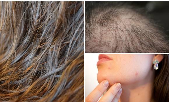 Soha ne aludj el vizes hajjal. Megmondjuk, miért!