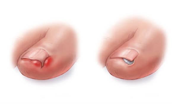 Ezzel a módszerrel azonnal orvosolhatod a benőtt körmöt fájdalommentesen!