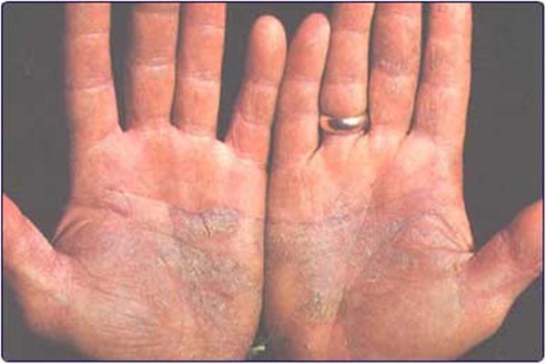 pikkelysömör kezelés exilight vörös foltok a lábon cukorbetegségben