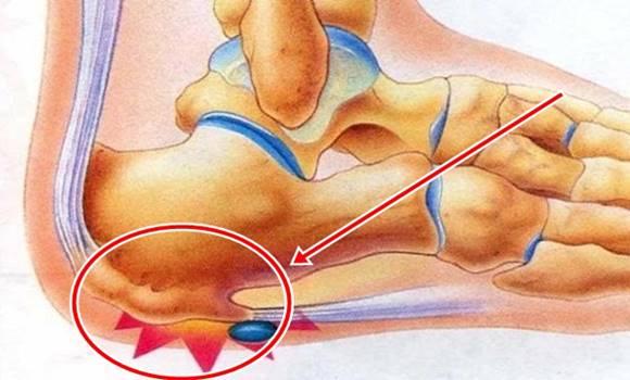 térdgyulladás sérülés után rángatózó vállfájdalom