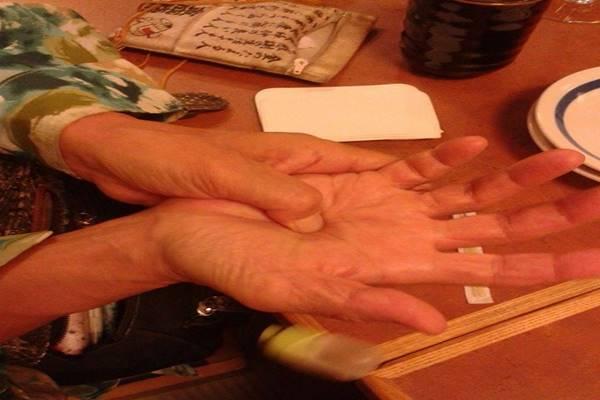 presszopunktura1
