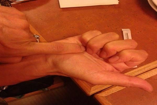 presszopunktura2