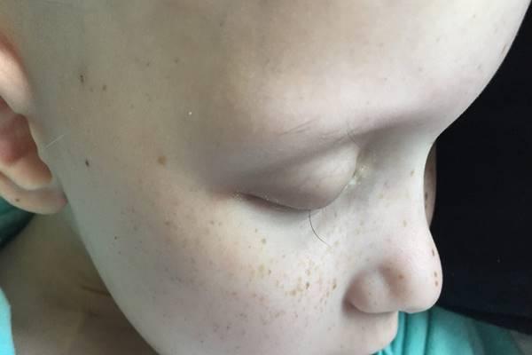 Az apuka lefényképezte a 7 éves kislánya legutolsó szempilláját. A kép összetörte az internetezők szívét
