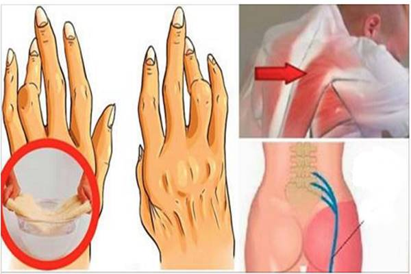 Az izom- és ízületi fájdalom fajtái, okai és kezelése | BENU Gyógyszertárak