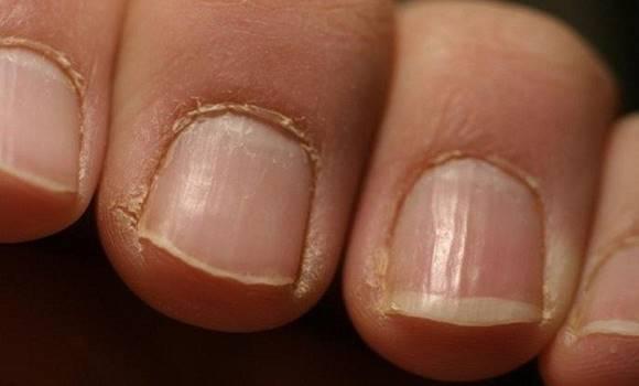 Figyelmeztetés: Ha látod ezt a körmödön, azonnal keress fel egy orvost!