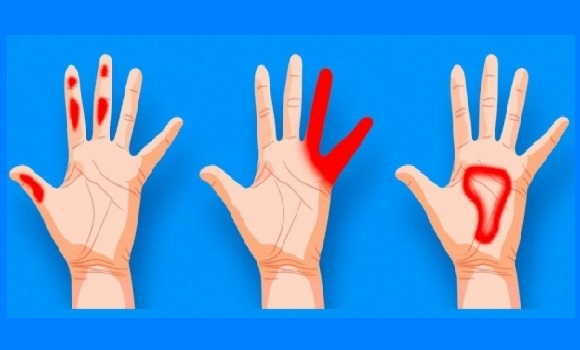 jobb kéz zsibbadás a vállízület mandzsetta