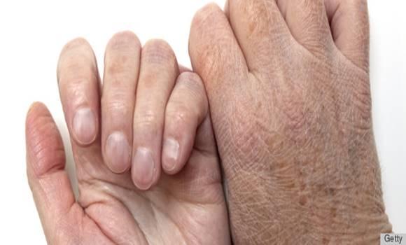 kiszáradás ízületi fájdalom)