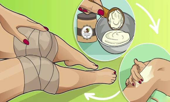 a térd házi kezelése)