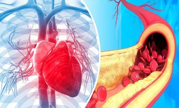 Az érrendszer védőitala – Csökkenti az érelmeszesedést és megelőzi a szívrohamot